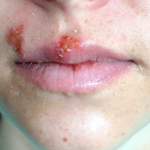 How To Get Rid of a Cold Sore Quick