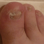 How to Get Rid of a Fungal Infection