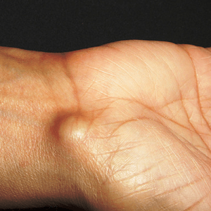 How to Get Rid of a Ganglion Cyst
