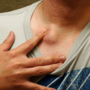 How to Get Rid of a Sebaceous Cyst