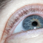 How To Get Rid Of A Stye On The Eye