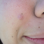 How to Get Rid of Acne Pimples