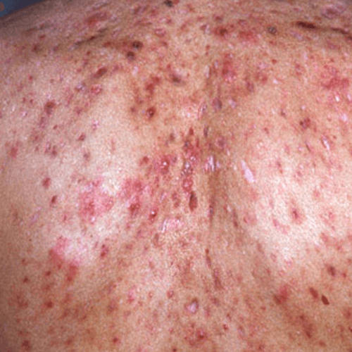 Get rid of red spots overnight