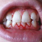 How to Get Rid of Bleeding Gums