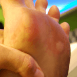 How to Get Rid of Blisters Fast