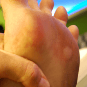 how-to-get-rid-of-blisters-fast.png