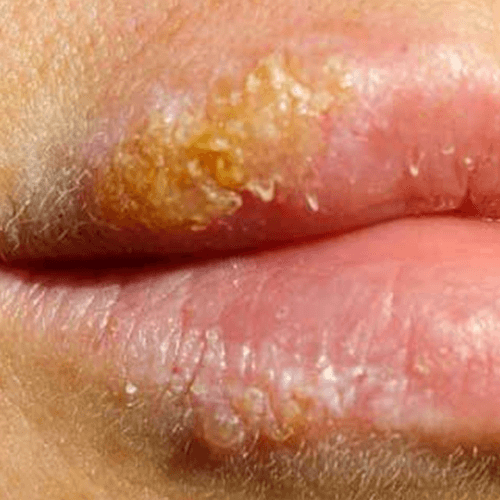 How to Get Rid of Blisters in Your Mouth