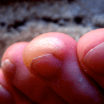 How to Get Rid of Blisters on Feet