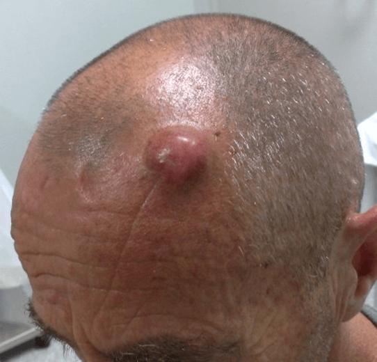 Image result for सिर के फोड़े
