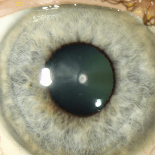 How To Get Rid Of Cataracts