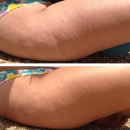 how-to-get-rid-of-cellulite-fast.png