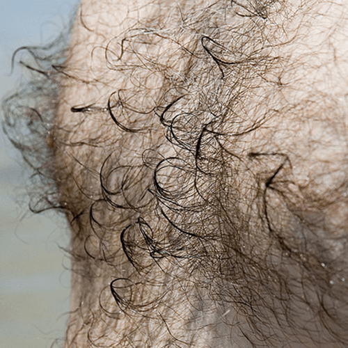 How To Get Rid Of Chest Hair For Men