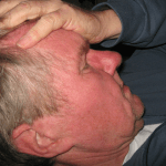 How to Get Rid of Cluster Headaches