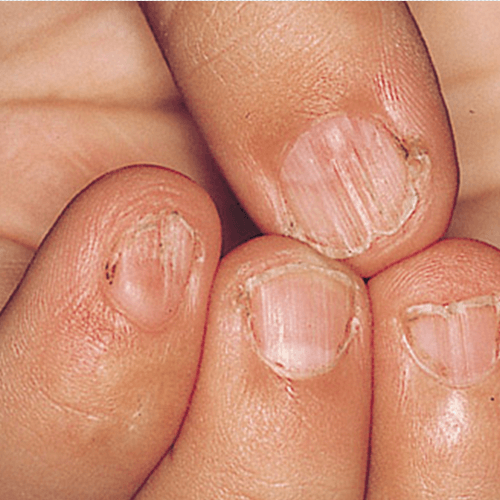 How To Get Rid Of Ed Ridged Finger Nails Stuff