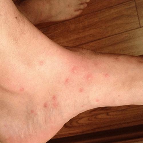 How To Get Rid Of Flea Bites