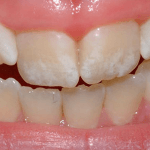 How to Get Rid of Fluorosis