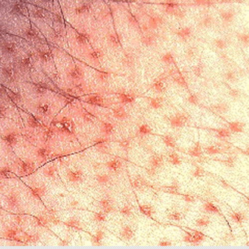 How To Get Rid Of Folliculitis How To Get Rid Of Stuff