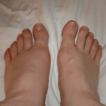 How to Get Rid of Foot Drop