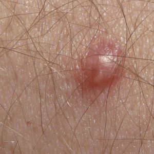 How to Get Rid of Genital Warts at Home