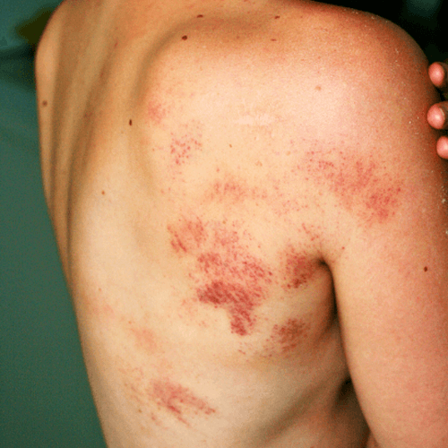 How To Get Rid of Hickeys Overnight