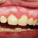 How to Get Rid of Inflamed Gums
