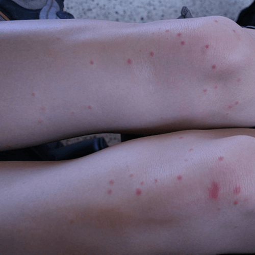 How To Get Rid Of Insect Bites How To Get Rid Of Stuff