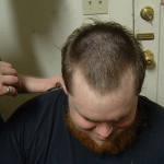 How to Get Rid of Male Pattern Baldness
