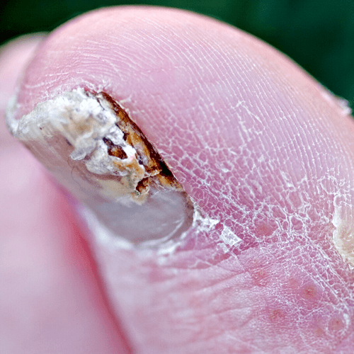 How to Get Rid of Nail Fungus – How to Get Rid of Stuff