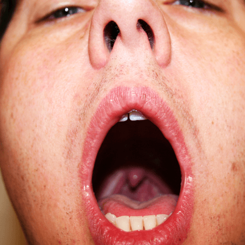 Phlegm In Throat Cough 58
