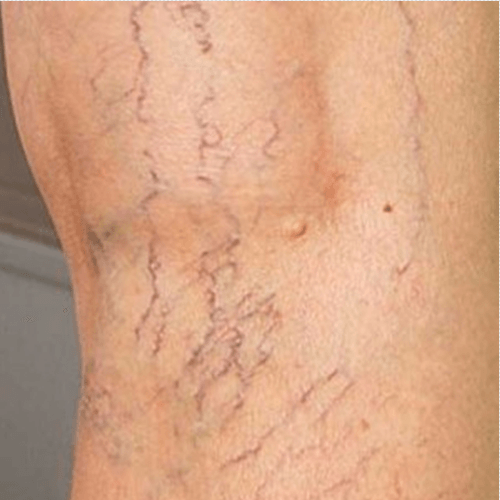 how-to-get-rid-of-spider-veins.png