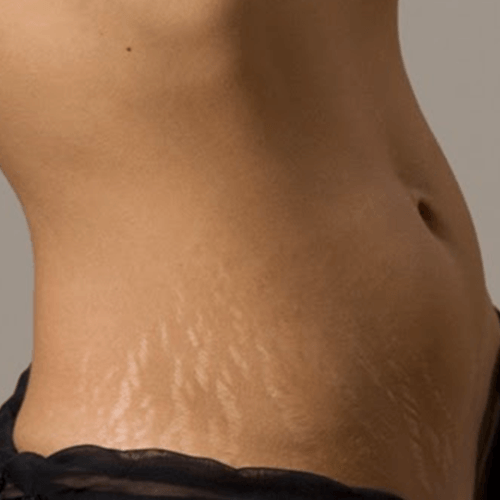 how-to-get-rid-of-stretch-marks-quickly.png