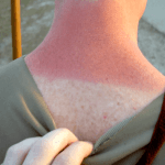 How To Get Rid Of Sun Spots How To Get Rid Of Stuff