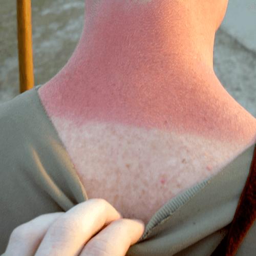 how to get sunburn fast