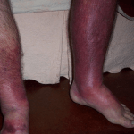 How to Get Rid of Thrombophlebitis