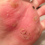 How to Get Rid of Warts By Freezing