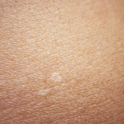 how-to-get-rid-of-white-spots.png