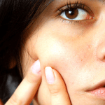 How To Get Rid of Whiteheads and Blackheads
