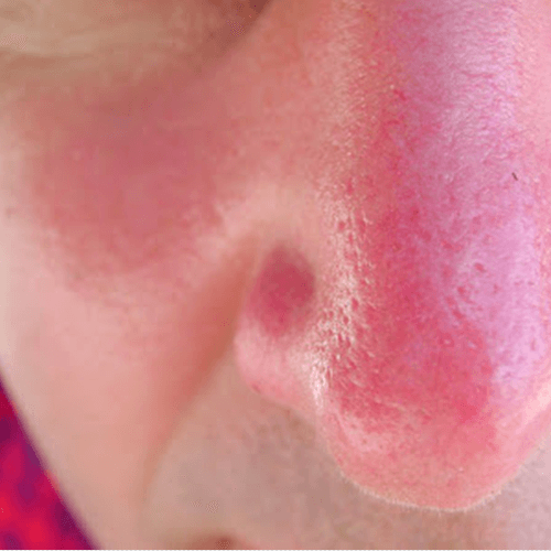 how to get rid of a sunburn naturally