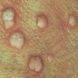 Pictures Of Vaginal Pimples